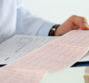Embolieprophylaxe bei Vorhofflimmern: Orale Antikoagulation nach patientenindividuellen Kriterien auswählen