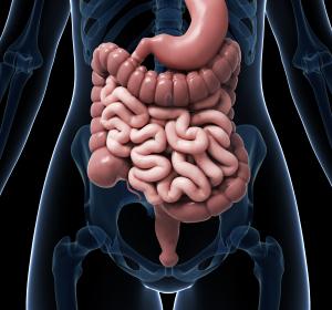 Rolle von Bakterien bei der Darmkrebsentstehung