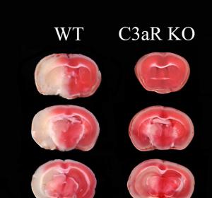 Komplement-Rezeptor C3aR blockieren, um gezielt vor Herzinfarkt und Schlaganfall zu schützen