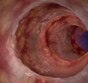 Colitis ulcerosa: DGVS aktualisiert Leitlinie