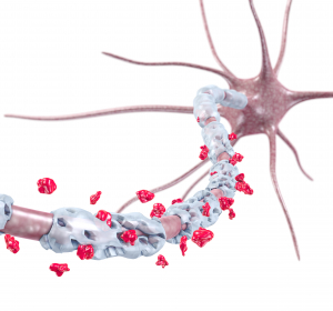 Ansatz für neue Therapieoption gegen Multiple Sklerose gefunden