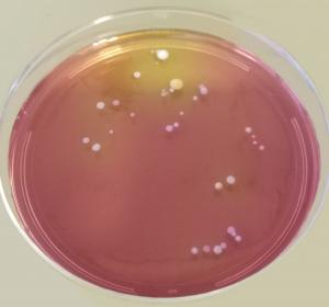 Beeinflussen Bakterien die Hautbarriere bei Neurodermitis?