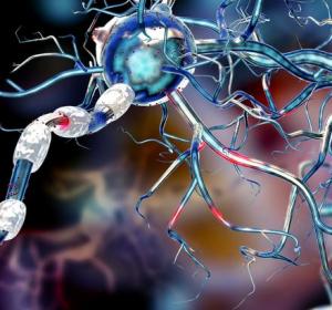 Multiple Sklerose: B-Zellen sind mitverantwortlich für Hirnschäden