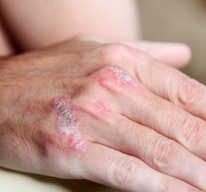 Auswahl des Biologikums bei Psoriasis: Individuelle Patientenkriterien berücksichtigen