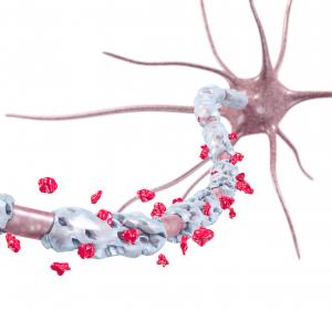 MS: Wie das Nervenzell-Netzwerk auf den Entzündungsangriff antwortet