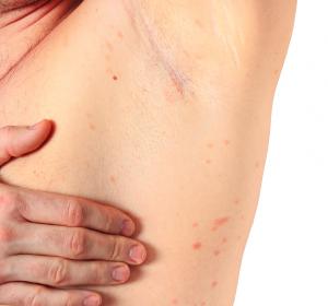 Wirksame Therapien bei Urtikaria-Vaskulitis