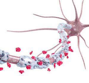 Multiple Sklerose: Blutmarker zeigt Nervenschädigung an, Siponimod bremst Progression