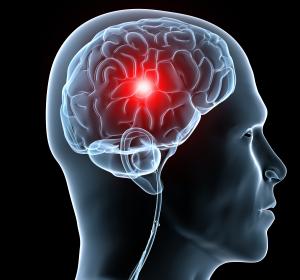 Behandlungszeitfenster beim Schlaganfall: MRT ist eine zuverlässige Uhr