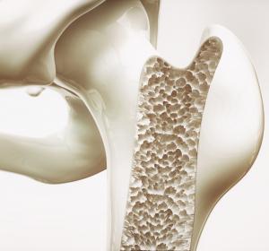 Individualisierte Therapie für Patienten mit Osteoporose