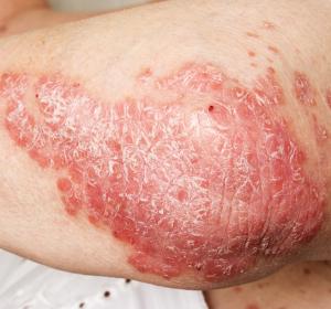 Ixekizumab: Starke und langanhaltende Wirksamkeit bei Psoriasis-Arthritis bestätigt