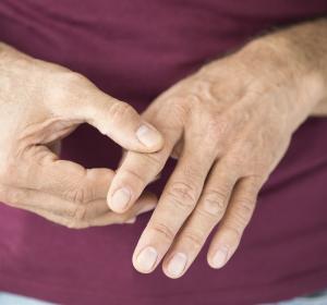 Rheumatoide Arthritis: Verbesserte Lebensqualität der Patienten durch Januskinase-Inhibitor