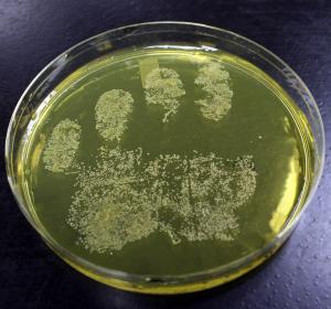 Staphylococcus aureus: Bakteriengifte lösen wichtige Bremse des Immunsystems