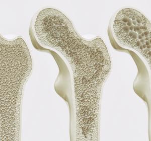 Osteoporose: Forscher hoffen auf Verlangsamung