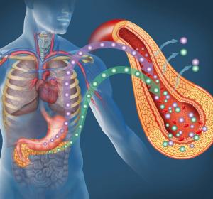 Typ-2-Diabetes: Weniger Hypoglykämien unter Insulin glargin 300 E/ml