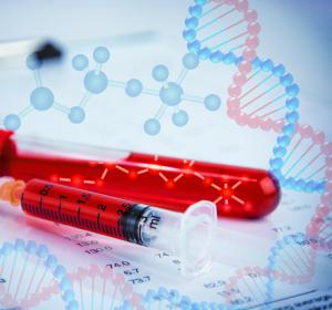 Ätiologie von Autoimmunkrankheiten: Untersuchung von Autoantikörpern soll Aufschluss geben