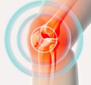 Kniegelenksverletzungen bei Kindern optimal behandeln