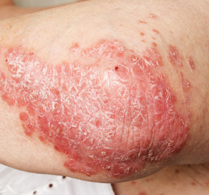 Plaque-Psoriasis: Interleukin (IL)-23-Hemmer zeigt Überlegenheit in Phase-III-Studie
