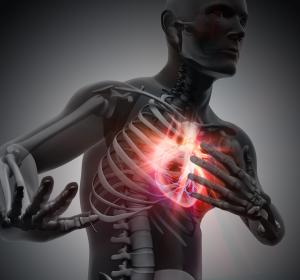 Kardiogener Schock: Keine Vorteile durch Impella-Pumpen