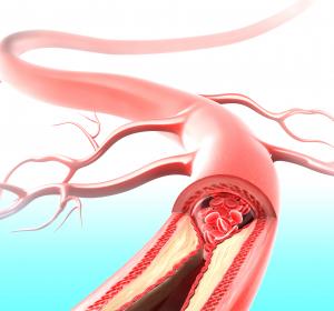 Marker für Herz-Kreislauf-Erkrankungen identifiziert