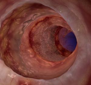 Colitis ulcerosa: Antrag auf Zulassungserweiterung von Ustekinumab