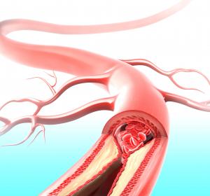 Atherosklerose: Schutzfunktion von MALAT1 im Mausmodell nachgewiesen