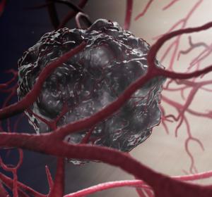 Natriumbikarbonat in der Tumortherapie