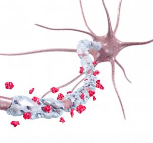 Inflammation: Protektiver Mechanismus identifiziert