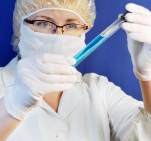 Ebola-Virus: Infizierte Zellen setzen Täuschkörper frei