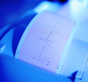 Broken-Heart-Syndrom: Herzinfarktähnliche Symptomatik