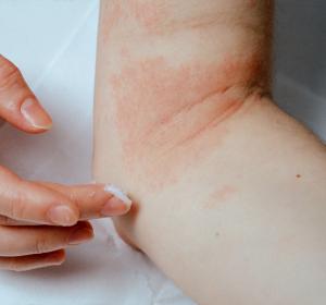 Neurodermitis: erhöhte Salzkonzentration in erkrankter Haut
