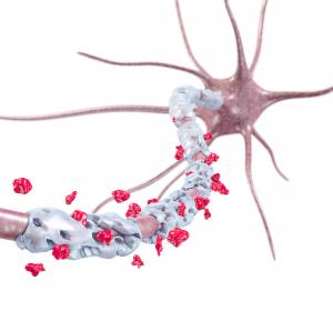 Multiple Sklerose: Fertigpen vereinfacht Medikation