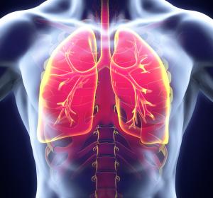 Asthma: Signifikante Verbesserung unter Anti-IL-5-Rezeptor-Antikörper Benralizumab
