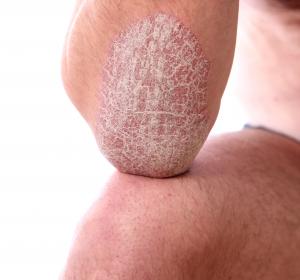 Plaque-Psoriasis: Neue Antikörper wirksamer als etablierte Biologika-Therapien