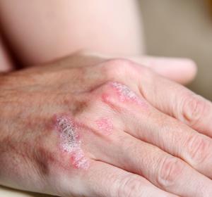 Topische Psoriasis: Initial- und Erhaltungstherapie mit Calcipotriol und Bethamethason