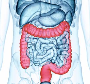 Colitis ulcerosa: Ergebnisse der Erhaltungstherapie mit Ustekinumab