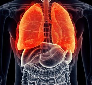 Asthma: Patientenbericht über Benralizumab