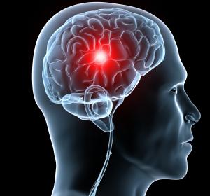 Aphasie nach Schlaganfall: Individualisierte Therapie mit Brain-Computer-Interface