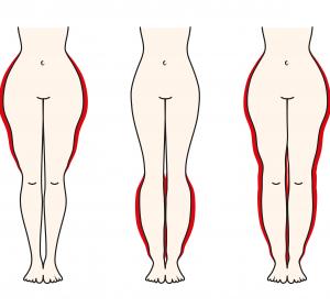 Lipödem: Studie zu Vor- und Nachteilen der Liposuktion