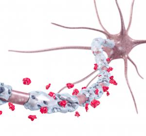 Multiple Sklerose: Genexpressionsanalysen zeigen toxische Proteinanhäufungen