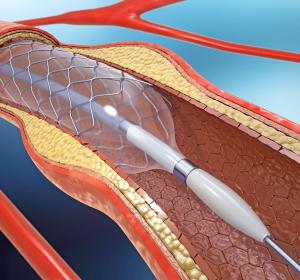 Atherosklerose: Neue Ansätze für pharmakologische Therapieverfahren