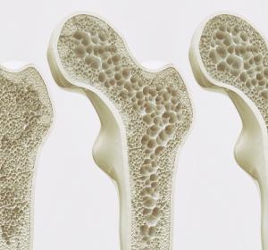 Osteoporose: Fraktur-Prophylaxe