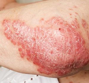 Plaque-Psoriasis: EU-Zulassung für Risankizumab