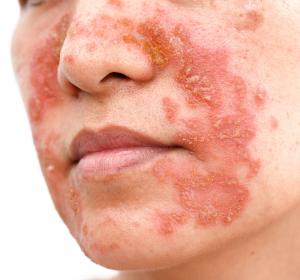 Psoriasis: Erscheinungsfreie Haut bei der Mehrheit der Patienten unter Risankizumab