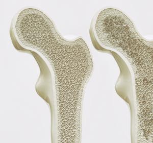 Osteoporose: Hausärzte sollen mehr in die Fraktur-Prophylaxe einbezogen werden