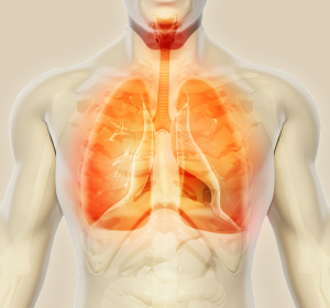 Lungenembolie: Ambulante Behandlung bei stabilen Patienten möglich