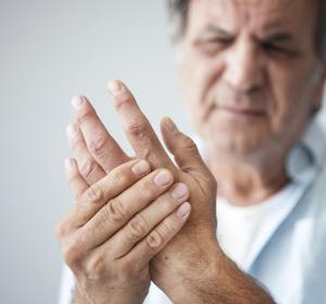 Rheumatoide Arthritis: Methotrexat weiterhin Goldstandard