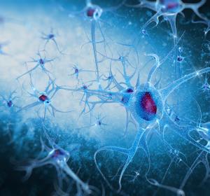 Neurodegenerative Erkrankungen: Eisenchelator-Medikament reduziert toxisches Eisen