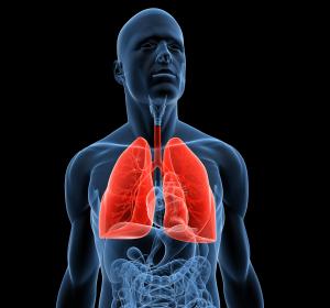 Fortgeschrittenes Lungenemphysem: Bronchoskopische Lungenvolumenreduktion mit endobronchialen Coils