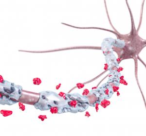 Entzündliche Polyneuropathien: Intravenöse Immunglobuline und subkutane Immunglobulin-Gabe werden bedeutende Therapieoptionen