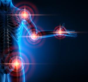 Psoriasis-Arthritis: IL-12/23-Inhibition zeigt langanhaltende Wirksamkeit und gute Verträglichkeit